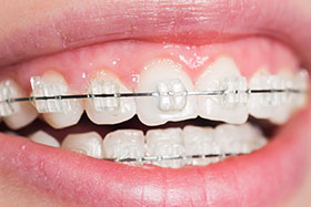 Mirage® Ceramic Braces