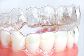 Invisalign® and Invisalign Teen® Clear Aligners
